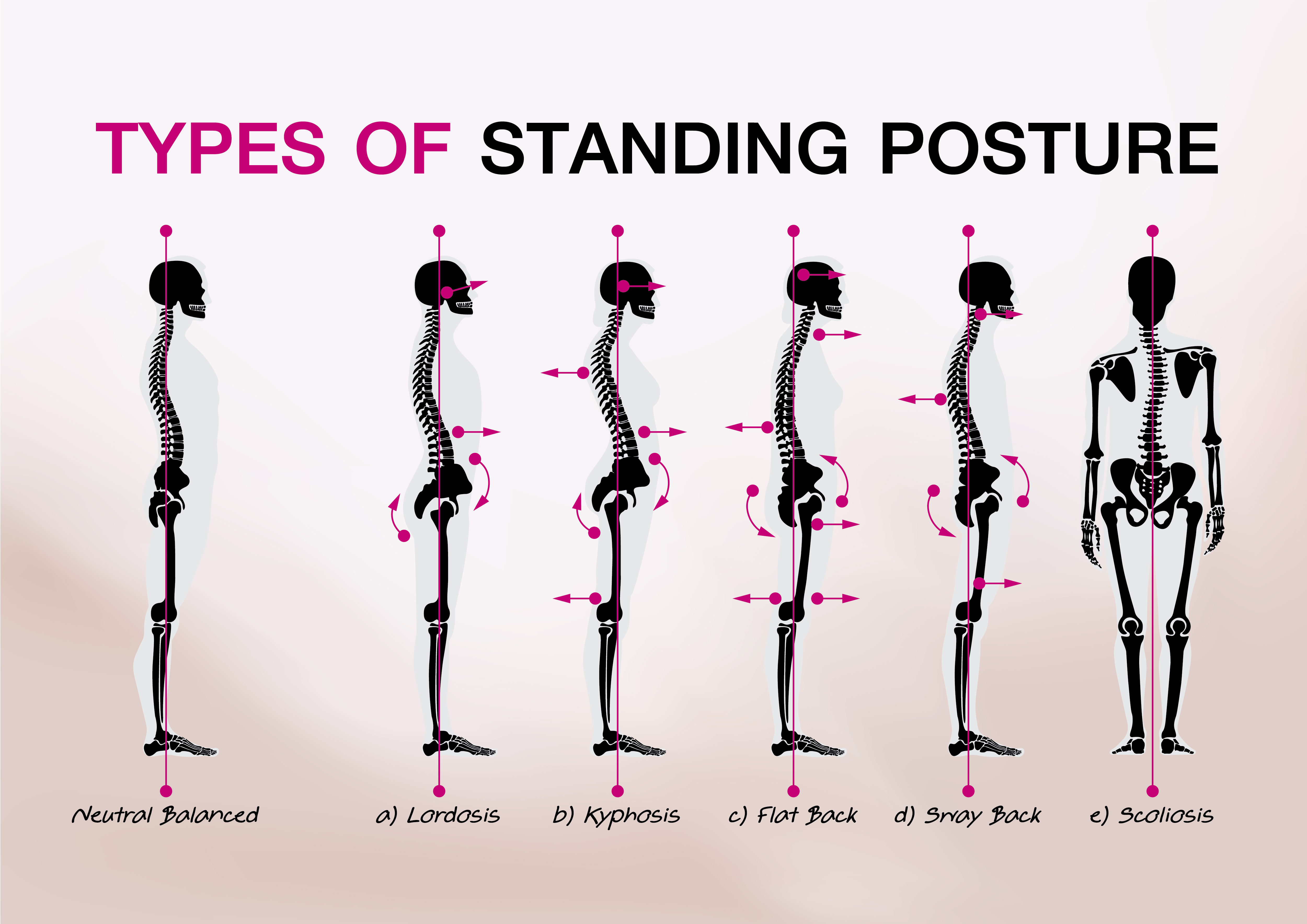 Is your posture hurting you?